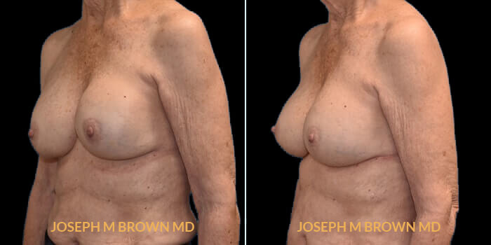 Patient 03 3/4th Left Side View Breast Asymmetry Tampa Aesthetic & Plastic Surgery