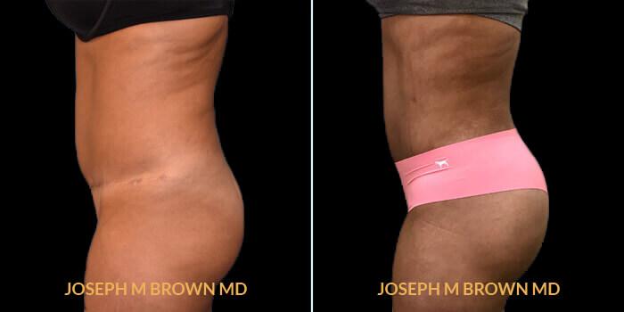 Patient 01 Left Side View Brazilian Butt Lift Tampa Aesthetic & Plastic Surgery