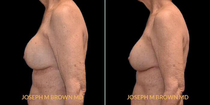 Patient 03 Left Side View Breast Asymmetry Tampa Aesthetic & Plastic Surgery