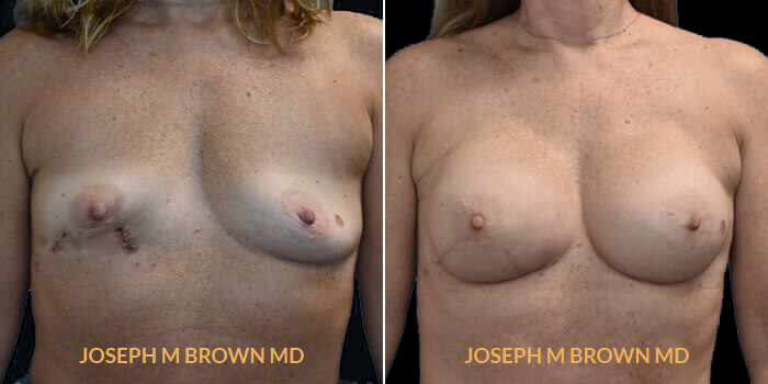 Patient 03 Front Side View Breast Reconstruction Tampa Aesthetic & Plastic Surgery