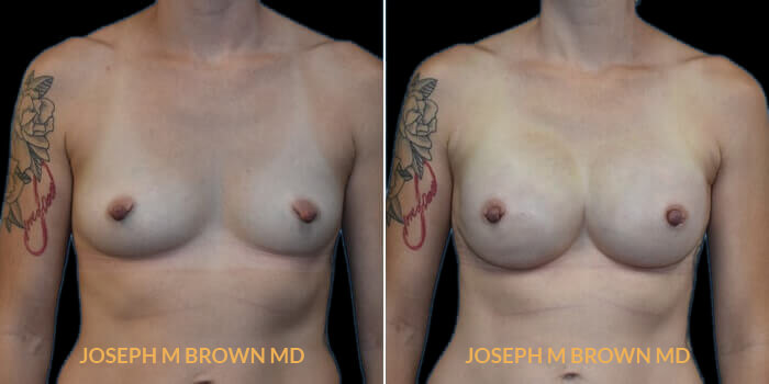 Patient 04 Front Side View Breast Reconstruction Tampa Aesthetic & Plastic Surgery