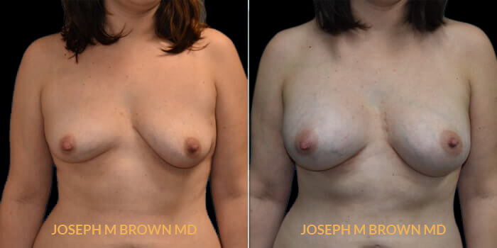 Patient 04 Front Side View Breast Asymmetry Tampa Aesthetic & Plastic Surgery