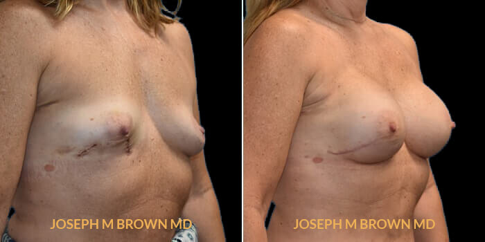 Patient 03 3/4th Right Side View Breast Reconstruction Tampa Aesthetic & Plastic Surgery