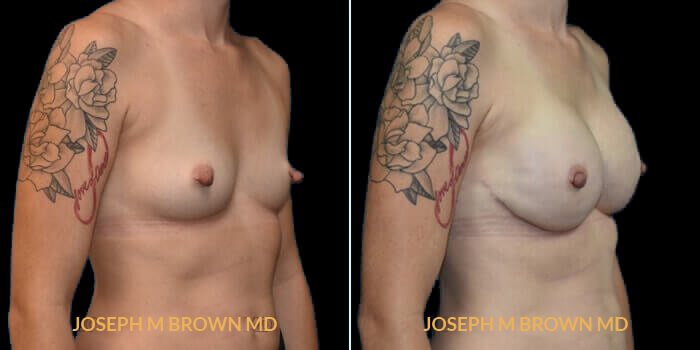 Patient 04 3/4th Right Side View Breast Reconstruction Tampa Aesthetic & Plastic Surgery