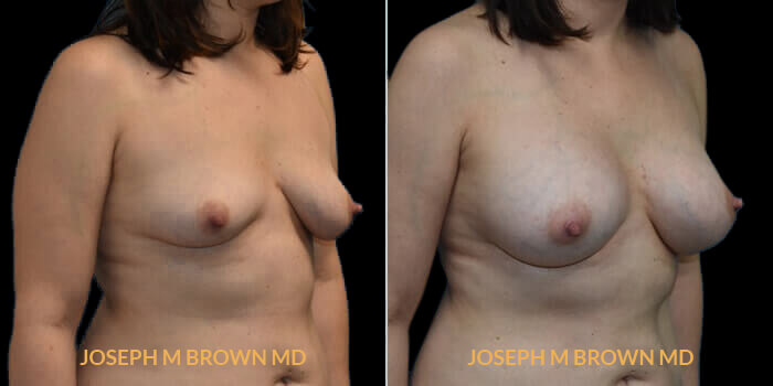 Patient 04 3/4th Right Side View Breast Asymmetry Tampa Aesthetic & Plastic Surgery