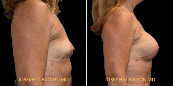 Patient 03 Right Side View Breast Reconstruction Tampa Aesthetic & Plastic Surgery