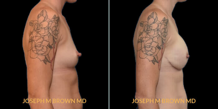 Patient 04 Right Side View Breast Reconstruction Tampa Aesthetic & Plastic Surgery