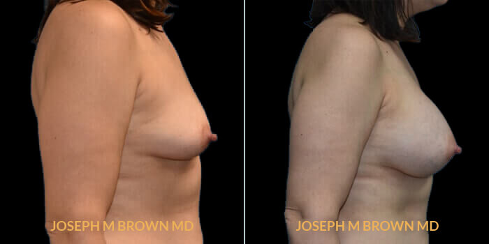 Patient 04 Right Side View Breast Asymmetry Tampa Aesthetic & Plastic Surgery