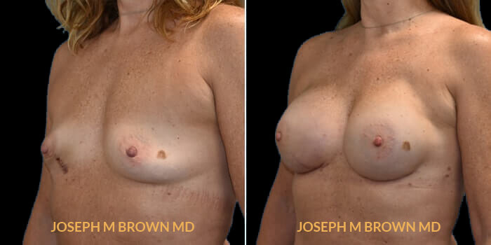 Patient 03 3/4th Left Side View Breast Reconstruction Tampa Aesthetic & Plastic Surgery