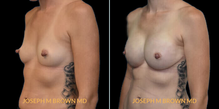 Patient 04 3/4th Left Side View Breast Reconstruction Tampa Aesthetic & Plastic Surgery