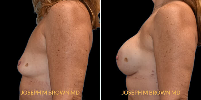 Patient 03 Left Side View Breast Reconstruction Tampa Aesthetic & Plastic Surgery