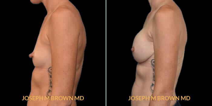 Patient 04 Left Side View Breast Reconstruction Tampa Aesthetic & Plastic Surgery