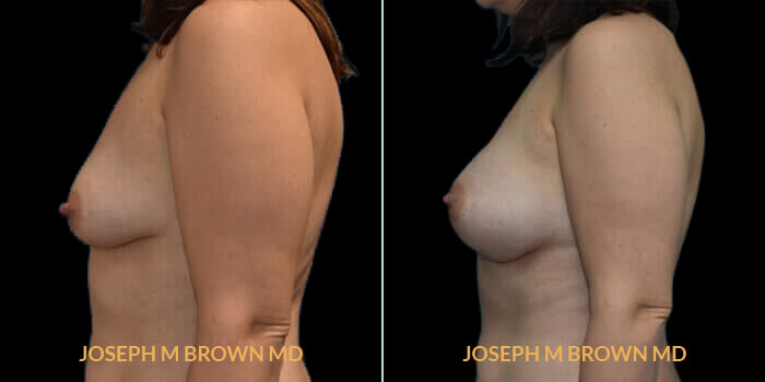 Patient 04 Left Side View Breast Asymmetry Tampa Aesthetic & Plastic Surgery