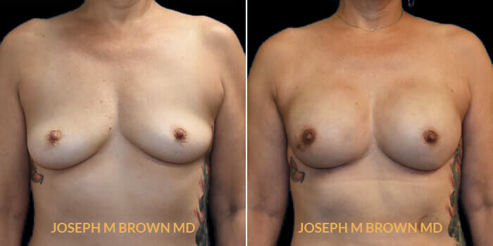 Patient 01 Front Side View Breast Reconstruction Tampa Aesthetic & Plastic Surgery