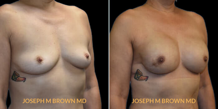 Patient 01 3/4th Right Side View Breast Reconstruction Tampa Aesthetic & Plastic Surgery