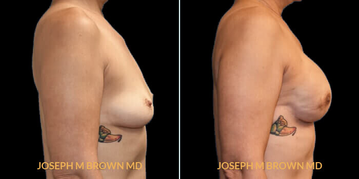 Patient 01 Right Side View Breast Reconstruction Tampa Aesthetic & Plastic Surgery