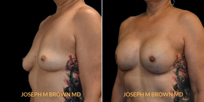 Patient 01 3/4th Left Side View Breast Reconstruction Tampa Aesthetic & Plastic Surgery