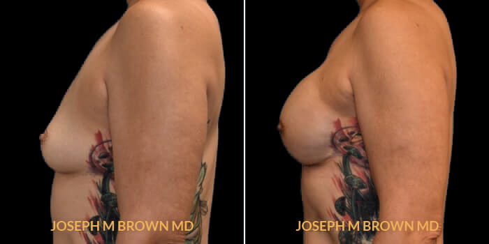 Patient 01 Left Side View Breast Reconstruction Tampa Aesthetic & Plastic Surgery