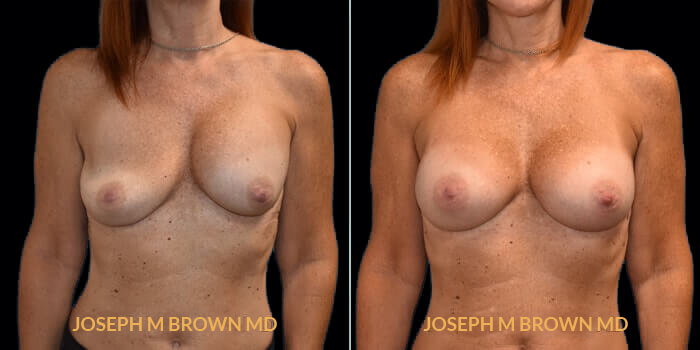Patient 05 Front Side View Breast Asymmetry Tampa Aesthetic & Plastic Surgery