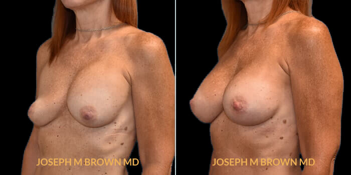 Patient 05 3/4th Left Side View Breast Asymmetry Tampa Aesthetic & Plastic Surgery