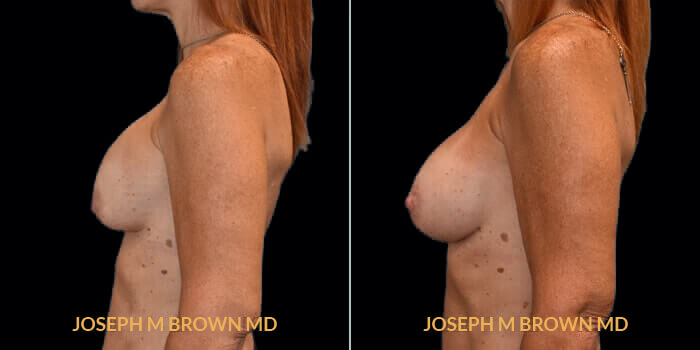 Patient 05 Left Side View Breast Asymmetry Tampa Aesthetic & Plastic Surgery