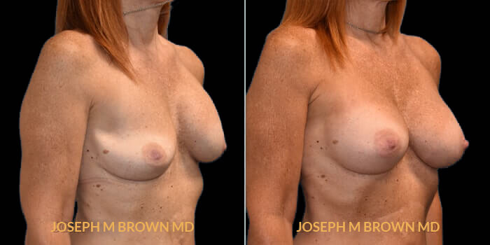 Patient 05 3/4th Right Side View Breast Asymmetry Tampa Aesthetic & Plastic Surgery