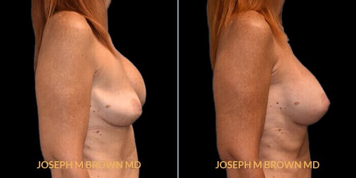 Patient 05 Right Side View Breast Asymmetry Tampa Aesthetic & Plastic Surgery