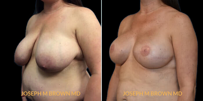 Patient 05 3/4th Left Side View Breast Reconstruction Tampa Aesthetic & Plastic Surgery