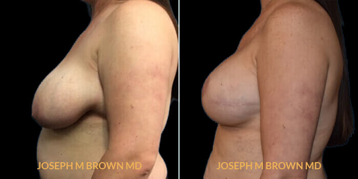 Patient 05 Left Side View Breast Reconstruction Tampa Aesthetic & Plastic Surgery