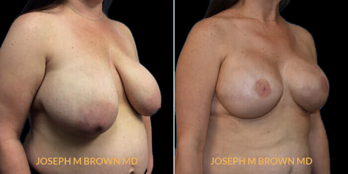Patient 05 3/4th Right Side View Breast Reconstruction Tampa Aesthetic & Plastic Surgery