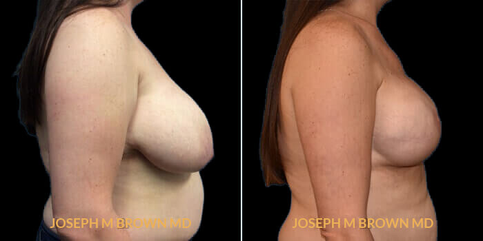 Patient 05 Right Side View Breast Reconstruction Tampa Aesthetic & Plastic Surgery