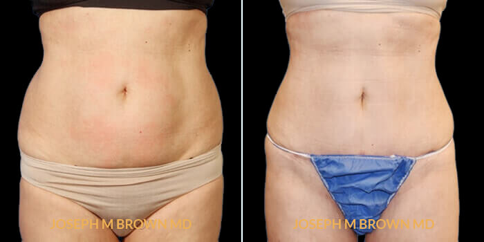 Patient 02 Front Side View Liposuction Tampa Aesthetic & Plastic Surgery