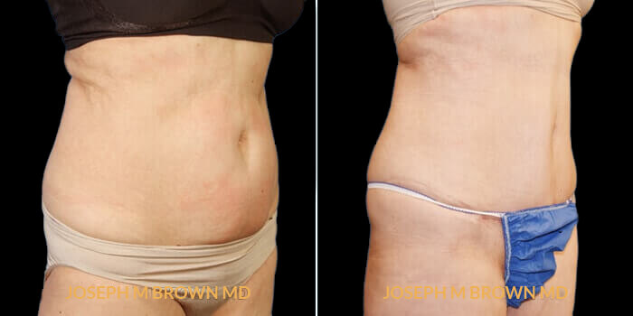 Patient 02 3/4th Right Side View Liposuction Tampa Aesthetic & Plastic Surgery
