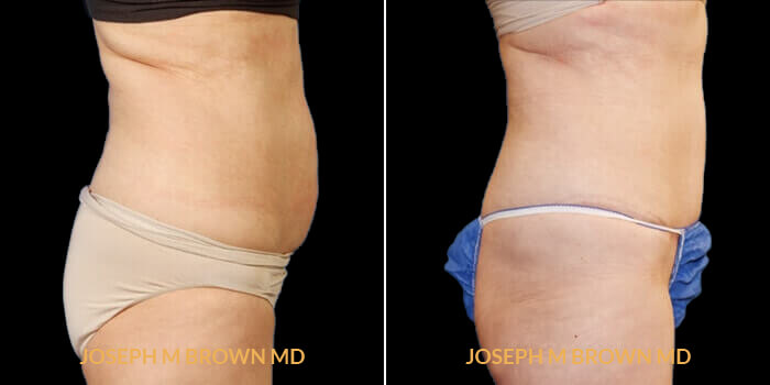 Patient 02 Right Side View Liposuction Tampa Aesthetic & Plastic Surgery