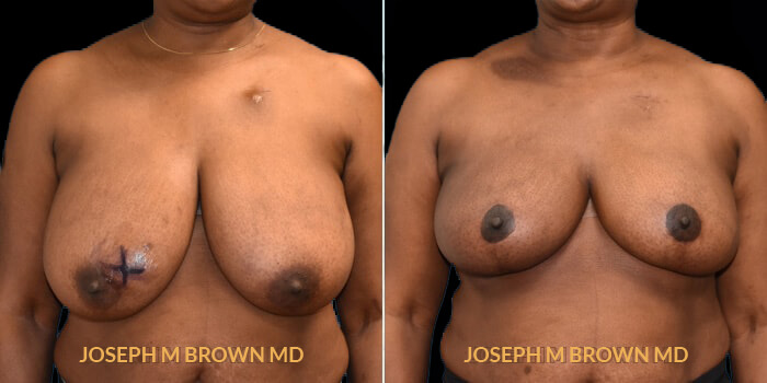 Breast Reduction - patient 02 before and after picture front view