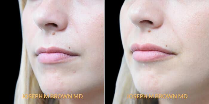 ac-lips-1b