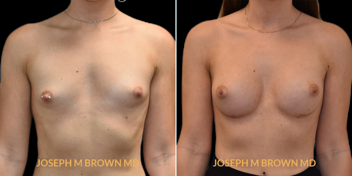 Patient 02 Front Side View Breast Augmentation Tampa Aesthetic & Plastic Surgery
