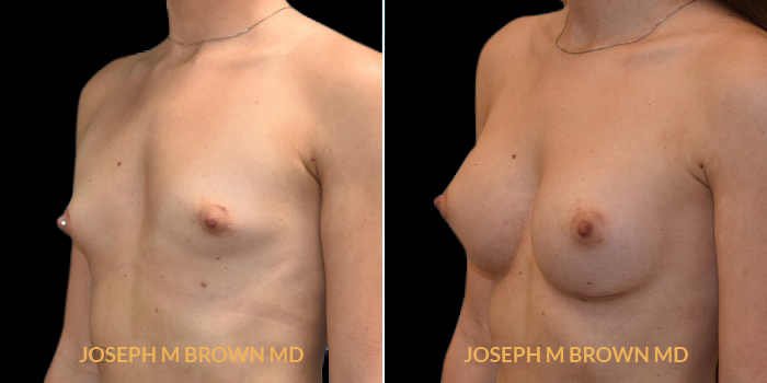Patient 02 3/4th Left Side View Breast Augmentation Tampa Aesthetic & Plastic Surgery