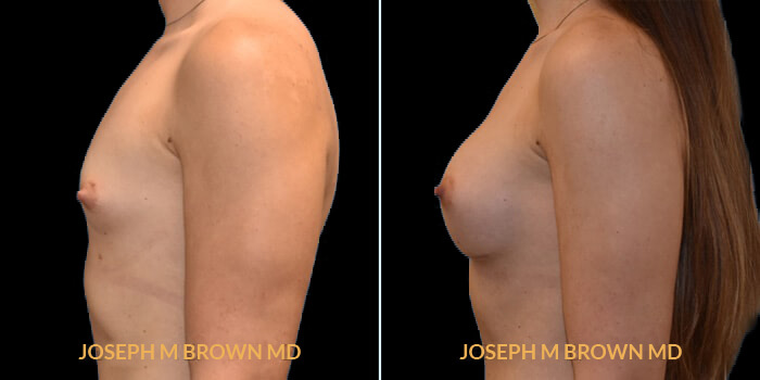 Patient 02 Left Side View Breast Augmentation Tampa Aesthetic & Plastic Surgery