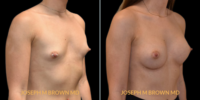 Patient 02 3/4th Right Side View Breast Augmentation Tampa Aesthetic & Plastic Surgery