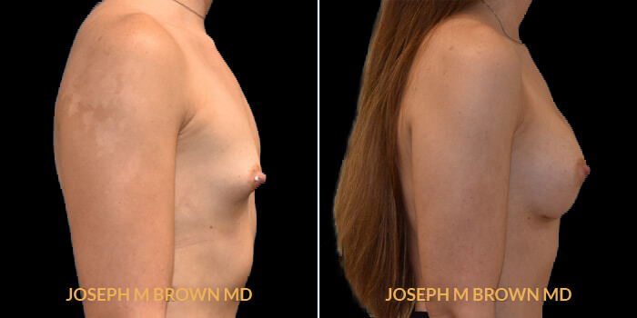 Patient 02 Right Side View Breast Augmentation Tampa Aesthetic & Plastic Surgery
