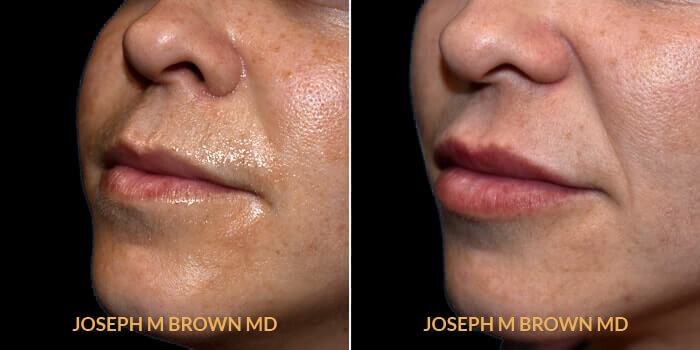 drg-lips-1b