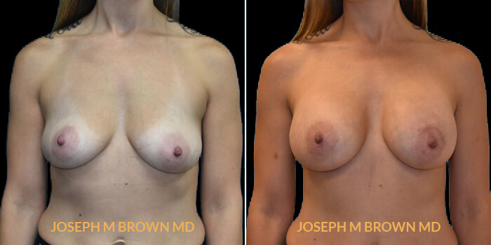 Patient 03 Front Side View Breast Augmentation Tampa Aesthetic & Plastic Surgery