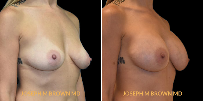 Patient 03 3/4th Right Side View Breast Augmentation Tampa Aesthetic & Plastic Surgery