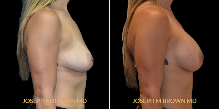 Patient 03 Right Side View Breast Augmentation Tampa Aesthetic & Plastic Surgery