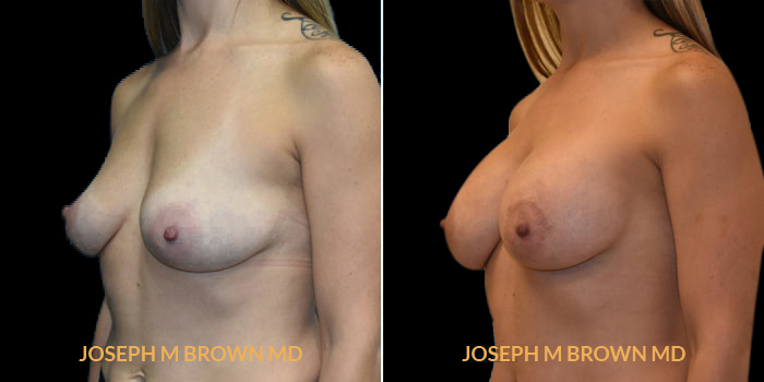 Patient 03 3/4th Left Side View Breast Augmentation Tampa Aesthetic & Plastic Surgery