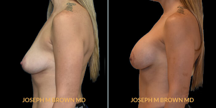 Patient 03 Left Side View Breast Augmentation Tampa Aesthetic & Plastic Surgery