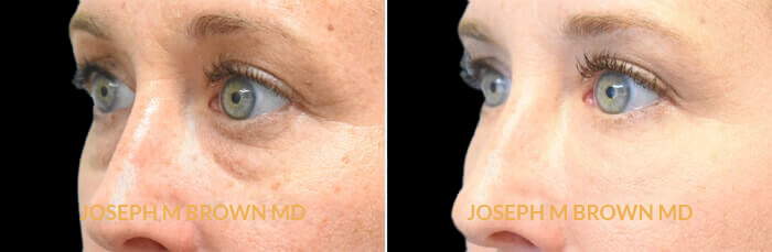 Patient 01 3/4th Left Side View Tear Troughs Tampa Aesthetic & Plastic Surgery