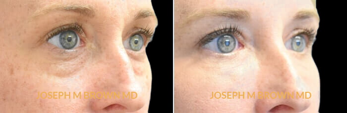 Patient 01 3/4th Right Side View Tear Troughs Tampa Aesthetic & Plastic Surgery