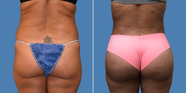 Brazilian butt lift - patient before and after picture front view